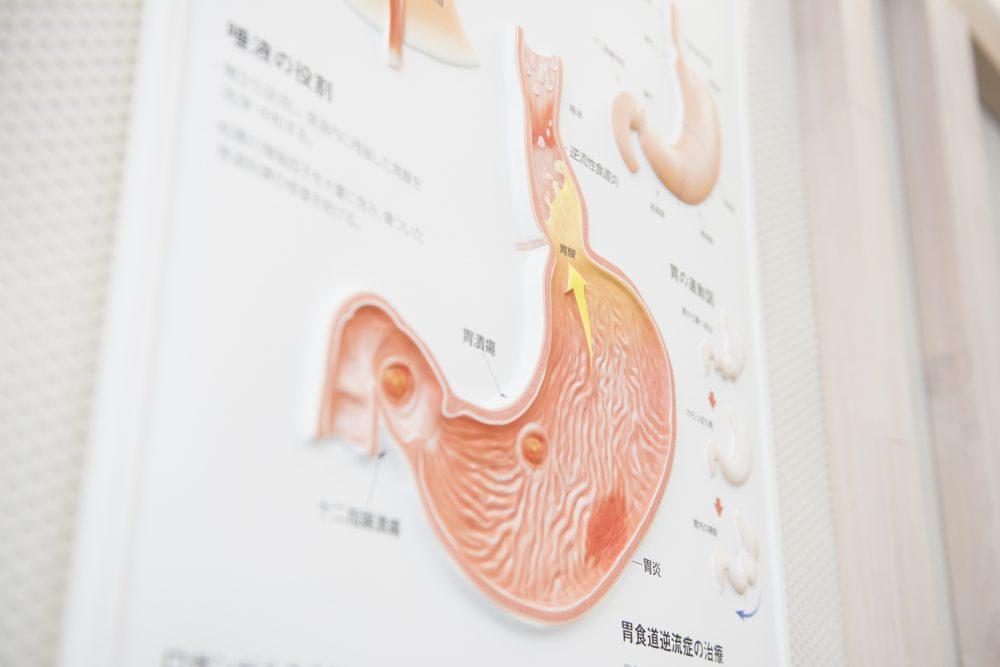 ピロリ菌検査|盛岡でピロリ菌検査ができる消化器内科